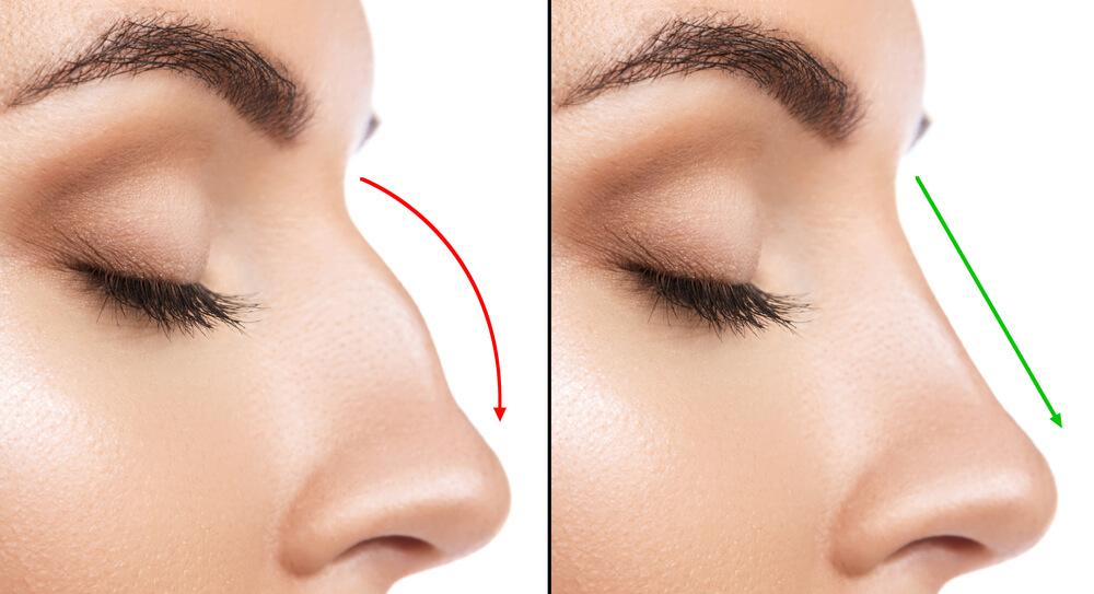 levantar la punta nasal
