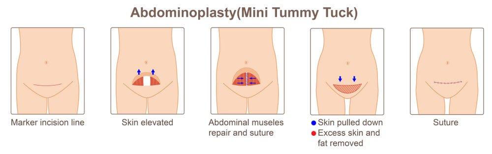 cirugía estética del abdomen