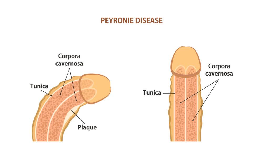 Soluciones Para La Curvatura Del Pene (Enfermedad DE Peyronie)