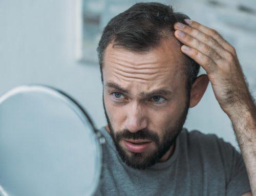 La Importancia De Combatir La Alopecia